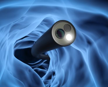 Colonoscopy technology concept with 3d rendering x-ray endoscope inside of intestine