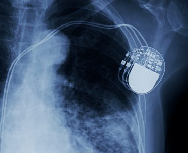x-ray image of permanent pacemaker implant in chest body , process in blue tone
